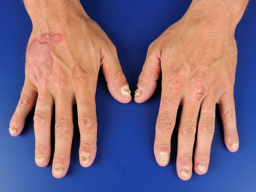 Que sur la peau après le psoriasis